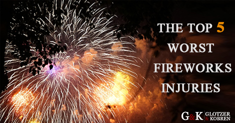 Boca Raton Fireworks Accident Lawyers